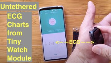 Produce ECG charts (up to 8 at a time) remotely (untethered) with this Tiny Health Smartwatch Module